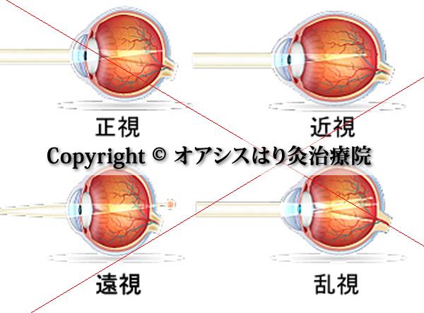 正視・近視・遠視・乱視の眼軸